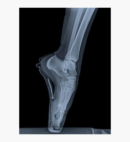 x-ray of a ballet dancer standing on pointe  Photographic Print
