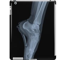 x-ray of a ballet dancer standing on pointe  iPad Case/Skin