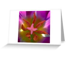Stamen Together - Is not easy to do Greeting Card