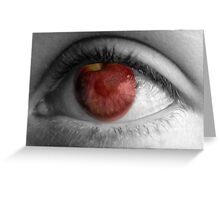 The Apple of My Eye Greeting Card