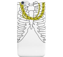 Gold Chains Skeleton iPhone Case/Skin