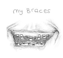 My Braces by Rosie Collins