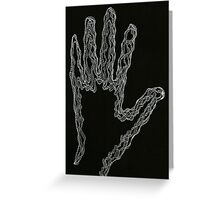Snaked Hand Greeting Card