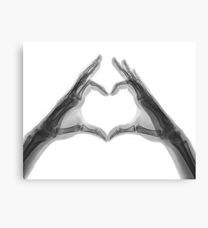 X-ray of hands forming a heart shape Canvas Print