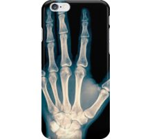 x-ray of wrist, hand and fingers iPhone Case/Skin