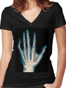 x-ray of wrist, hand and fingers Women's Fitted V-Neck T-Shirt