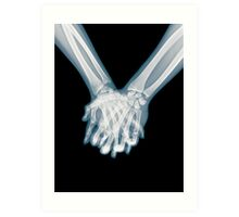x-ray of a couple Holding Hands Art Print