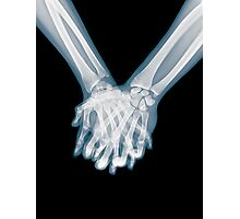 x-ray of a couple Holding Hands Photographic Print