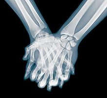 x-ray of a couple Holding Hands by PhotoStock-Isra