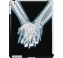 x-ray of a couple Holding Hands iPad Case/Skin