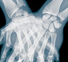 x-ray of a couple Holding Hands Sticker