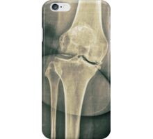 x-ray of the right knee  iPhone Case/Skin