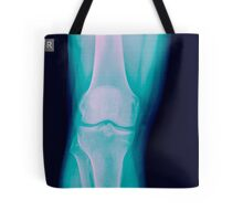 Knee x-ray of a 44 year old male patient front view Tote Bag