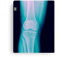 Knee x-ray of a 44 year old male patient front view Canvas Print