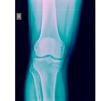 Knee x-ray of a 44 year old male patient front view Photographic Print