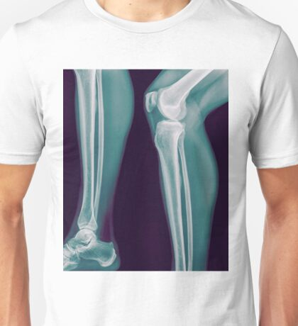 x-ray of the right knee of a 42 year old male  Unisex T-Shirt