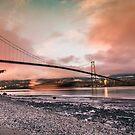 Lions gate bridge, Vancouver by Jordan Bails