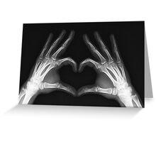 X-Ray Love Greeting Card