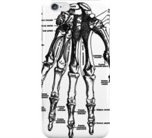 Which Finger Do I Break First? iPhone Case/Skin