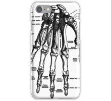 Which Finger Do I Break First? iPhone Case/Skin
