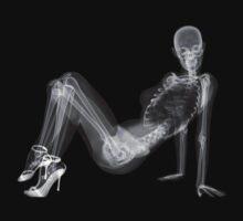 Sexy Woman X-Ray by BevsandBecka