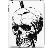 The Skull of Phineas Gage Vintage Illustration Vector iPad Case/Skin