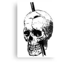 The Skull of Phineas Gage Vintage Illustration Vector Metal Print