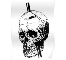 The Skull of Phineas Gage Vintage Illustration Vector Poster