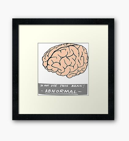 Abby Normal (Young Frankenstein) Framed Print