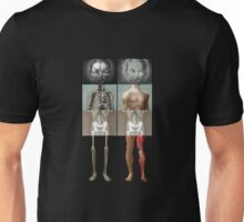 The Twins get new Legs T-Shirt