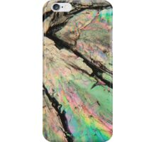 Sweet crystals: Sugar under a microscope iPhone Case/Skin