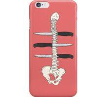 Backstabbed iPhone Case/Skin