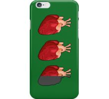 A more realistic health meter iPhone Case/Skin