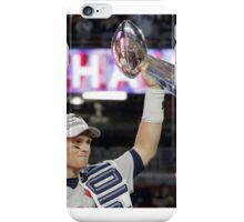 Tom Brady : The evolution iPhone Case/Skin