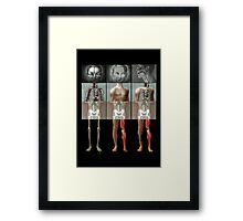 The meeting of the Mangled Framed Print