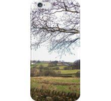 Rolling Hills in Eldwick, UK iPhone Case/Skin
