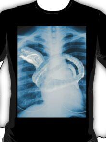 Chestburster X-Ray T-Shirt