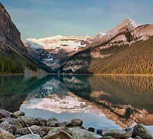 Lake Louise Series 4 by Amanda White