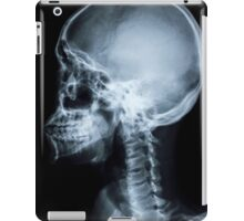 X Ray Face iPad Case/Skin