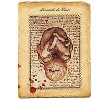 Abortion Photographic Print