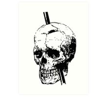 The Skull of Phineas Gage Vintage Illustration Vector Art Print