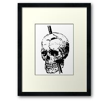The Skull of Phineas Gage Vintage Illustration Vector Framed Print