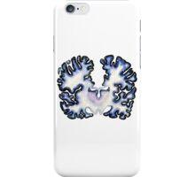 Galaxy Nissl Stain Brain iPhone Case/Skin