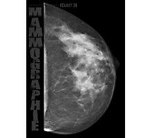 Mammographie - Screening Photographic Print