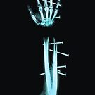 Fingernails by ZOMBIETEETH