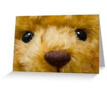 TeDdY's FaCe! Greeting Card