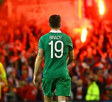 Polish Flares and Irish Player by Billy Galligan