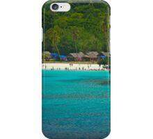 Champagne Bay iPhone Case/Skin