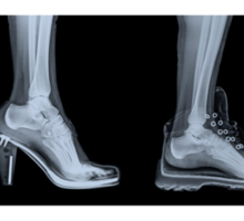 X-ray of a woman's foot in 4 different shoes Sticker