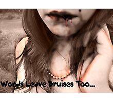 Words Bruise Photographic Print